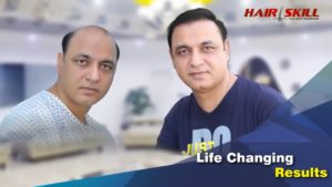 Hair Transplant Center in Pakistan