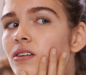 How to deal acne scars