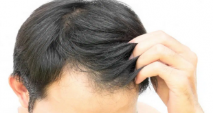 best oil for hair regrowth